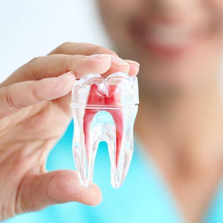 endodontia-clinics
